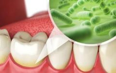 O que é placa bacteriana – Placa Dental ?